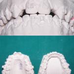 Ortodonzia&ImpiantiOsteointegrati2
