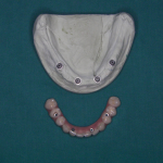 Protesi su Implants - All in four7