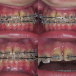 Traumatologia dentaria2
