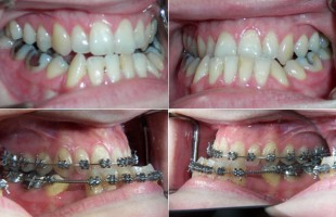 Aesthetics and oral functions in Orthodontics