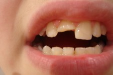 Dental  and Craniofacial Traumatology