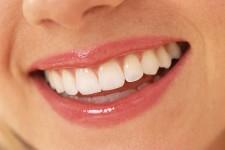 Aesthetics and Cosmetics in Orthodontics