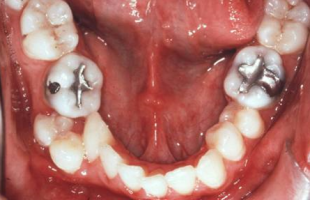 Failure, relapse and retention in Orthodontics