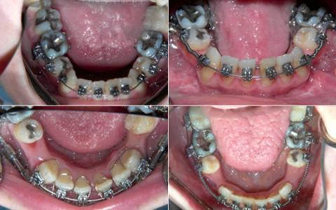Ortodonzia e Chirurgia ortognatica IOS srl