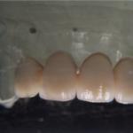 Corone o ponti in zirconio Ceramica 2