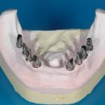 Protesi fissa Osteointegrata