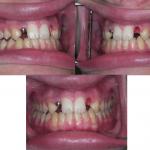 Ortodonzia&ImpiantiOsteointegrati4