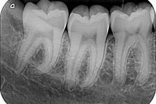 Radiografie odontoiatriche