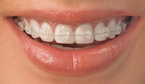 Orthodontics and Orthodontic Surgery