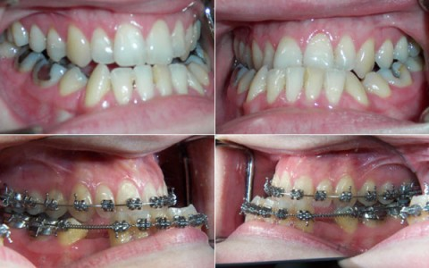 Orthodontics and Orthognatic Surgery : multidisciplinary approach and treatment planning in complex cases